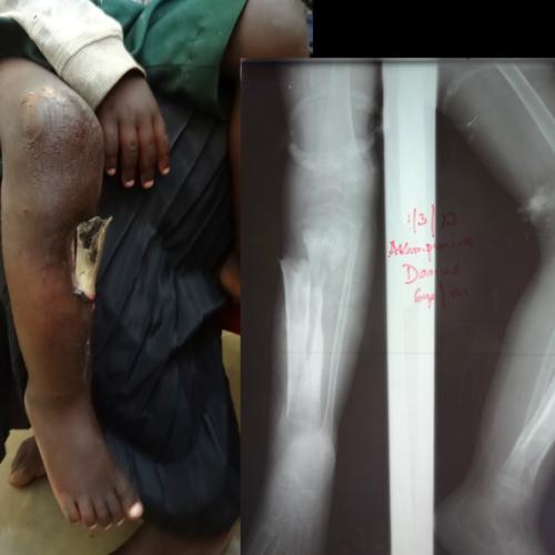 Radiographie de la jambe de Darius
