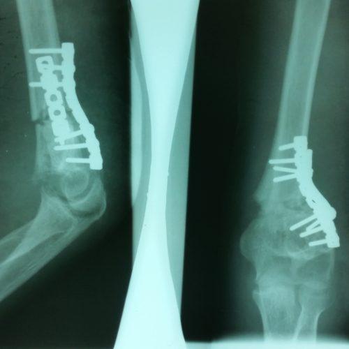 Une bonne radiographie est possible