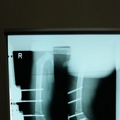 Exemple d'une opération et ...d'une radiographie réussie